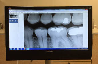 Cary family dentist using digital imaging